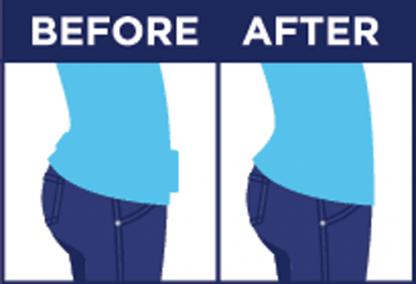 original before & after